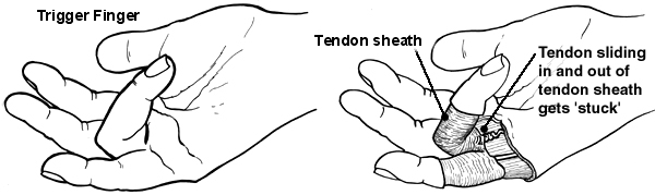 Diagram of the hand showing trigger finger