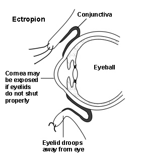 Cross-section diagram of an eye showing an ectropion