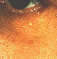 calcium in adult pores