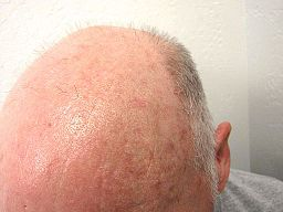 Actinic keratosis on balding head