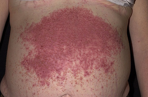 Dermatitis Herpetiformis (DH) is often confused with Psoriasis, a chronic skin condition 2