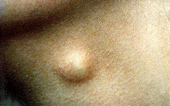 DERMOID CYST - ON NECK