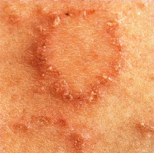 DISCOID ECZEMA -TYPICAL LESION