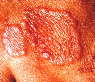 GRANULOMA ANNULARE - ON HAND