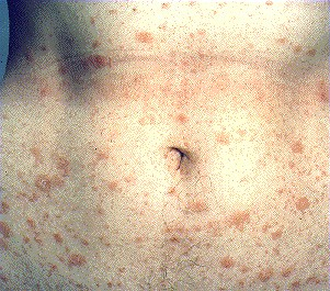PITYRIASIS ROSEA -ON ABDOMEN