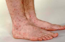 Erythema multiforme on feet