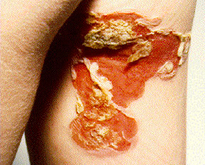 impetigo on leg