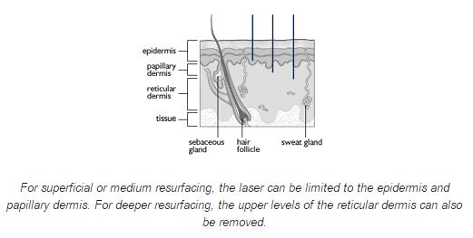 Laser resurfacing