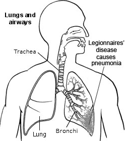 Lungs and airways - Legionnaires' disease
