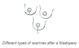 Mastopexy scarlines