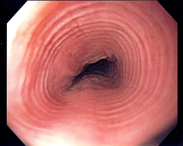 Multi-ring oesophagus