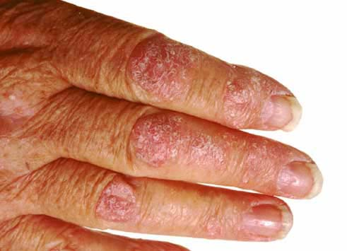 Patients with guttate, erythrodermic, or pustular psoriasis at the time of screening 3