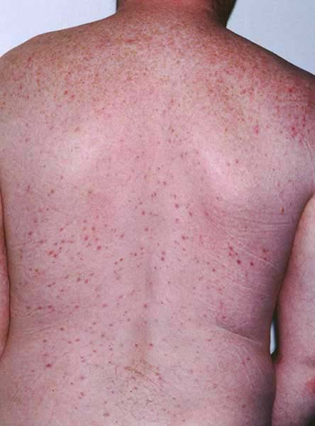 Folliculitis Treatment, Causes, and Home Remedies