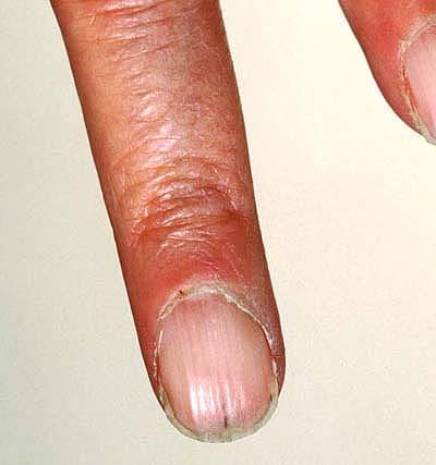 Nail Disorders Clinic | OHSU Dermatology | OHSU