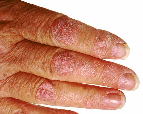 Other conditions that may appear similar to onychomycosis include: psoriasis, normal aging, yellow nail syndrome, and chronic paronychia 2
