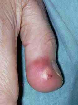 cellulitis of the finger - uptodate.com