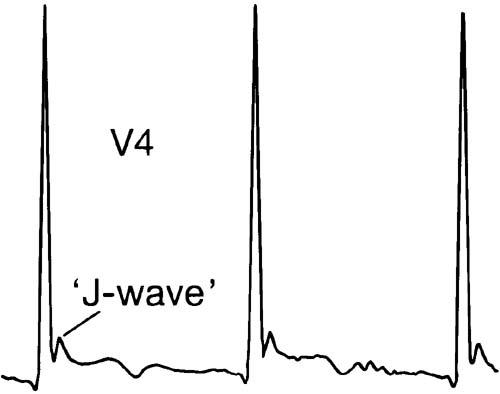 HYPOTHERMIA ECG