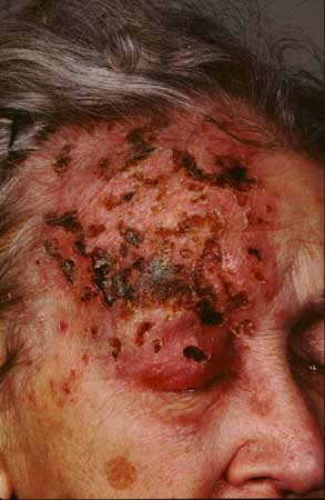 What Is The Medical Term Shingles? 2