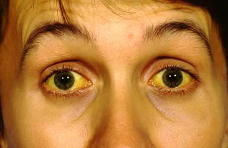 JAUNDICE ; CAUSES AND ITS REMEDY BY WAY OF SIMPLE METHOD