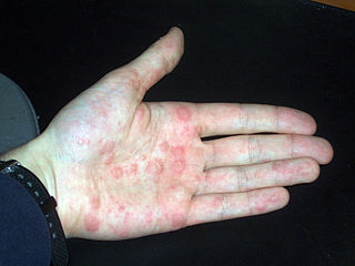 Dyshidrotic Eczema Treatment | National Eczema Association