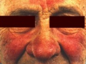 rosacea on nose, cheeks and forehead